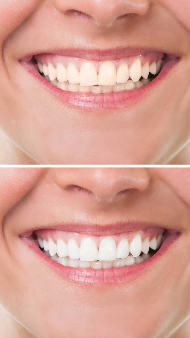 best-dentist-in-bromley-near-me